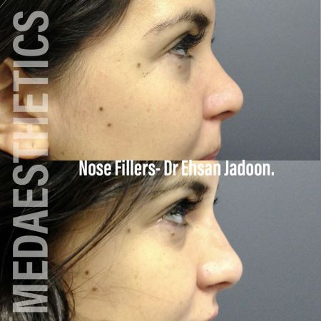 Medaesthetics - Nose Fillers - Before and After Picture 20200427131624 - Treatment performed by Doctor Ehsan Jadoon
