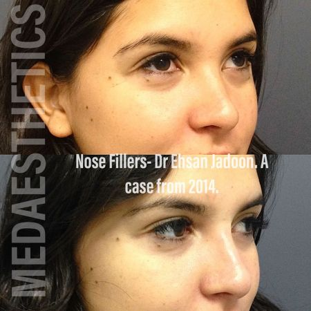Medaesthetics - Nose Fillers - Before and After Picture 20200427131625 - Treatment performed by Doctor Ehsan Jadoon