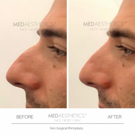 Medaesthetics - Nose Fillers - Before and After Picture 20200211122349 - Treatment performed by Doctor Ehsan Jadoon