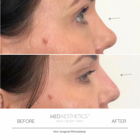 Medaesthetics - Nose Fillers - Before and After Picture 20200211122352 - Treatment performed by Doctor Ehsan Jadoon