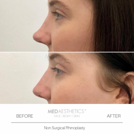Medaesthetics - Nose Fillers - Before and After Picture 20200211122353 - Treatment performed by Doctor Ehsan Jadoon