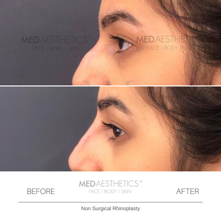 Medaesthetics - Nose Fillers - Before and After Picture 20200211122420 - Treatment performed by Doctor Ehsan Jadoon