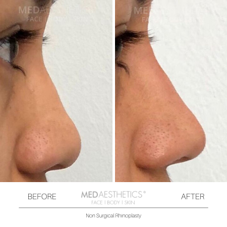 Medaesthetics - Nose Fillers - Before and After Picture 20200211122422 - Treatment performed by Doctor Ehsan Jadoon