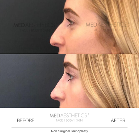Medaesthetics - Nose Fillers - Before and After Picture 20200211122501 - Treatment performed by Doctor Ehsan Jadoon