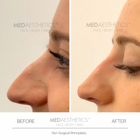 Medaesthetics - Nose Fillers - Before and After Picture 20200211122538 - Treatment performed by Doctor Ehsan Jadoon