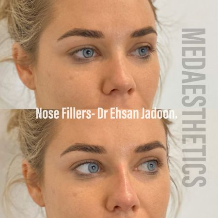 Medaesthetics - Nose Fillers - Before and After Picture 20200427130524 - Treatment performed by Doctor Ehsan Jadoon