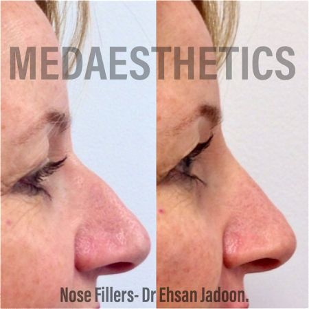Medaesthetics - Nose Fillers - Before and After Picture 20200427130525 - Treatment performed by Doctor Ehsan Jadoon
