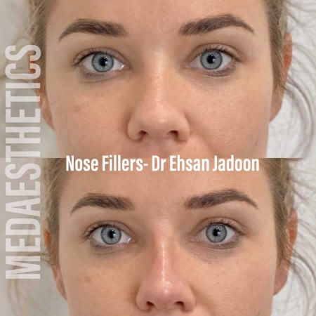 Medaesthetics - Nose Fillers - Before and After Picture 20200611094053 - Treatment performed by Doctor Ehsan Jadoon