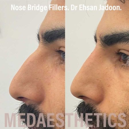 Medaesthetics - Nose Fillers - Before and After Picture 20200629094553 - Treatment performed by Doctor Ehsan Jadoon