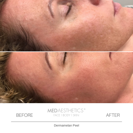 Medaesthetics - Dermamelan Peel  - Before and After Picture 20200217111200 - Treatment performed by Doctor Ehsan Jadoon