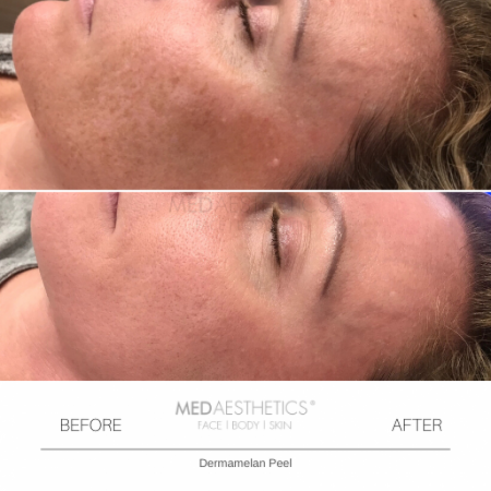 Medaesthetics - Dermamelan Peel  - Before and After Picture 20200217111201 - Treatment performed by Doctor Ehsan Jadoon