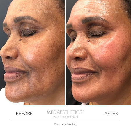 Medaesthetics - Dermamelan Peel  - Before and After Picture 20200217111203 - Treatment performed by Doctor Ehsan Jadoon