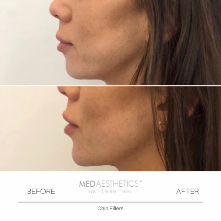 Medaesthetics - Chin and Jawline Fillers - Before and After Picture 20200210125201 - Treatment performed by Doctor Ehsan Jadoon