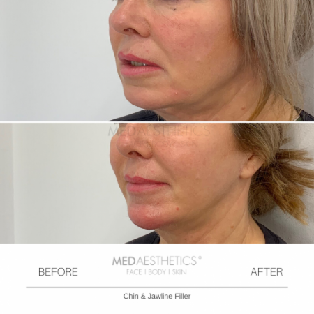 Medaesthetics - Chin and Jawline Fillers - Before and After Picture 20200210125202 - Treatment performed by Doctor Ehsan Jadoon