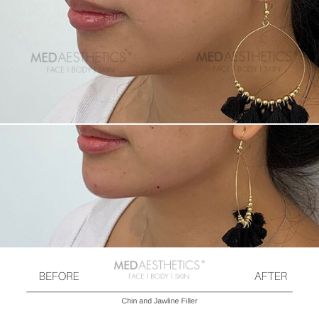 Medaesthetics - Chin and Jawline Fillers - Before and After Picture 20200210125203 - Treatment performed by Doctor Ehsan Jadoon