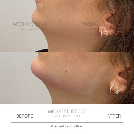 Medaesthetics - Chin and Jawline Fillers - Before and After Picture 20200210125204 - Treatment performed by Doctor Ehsan Jadoon