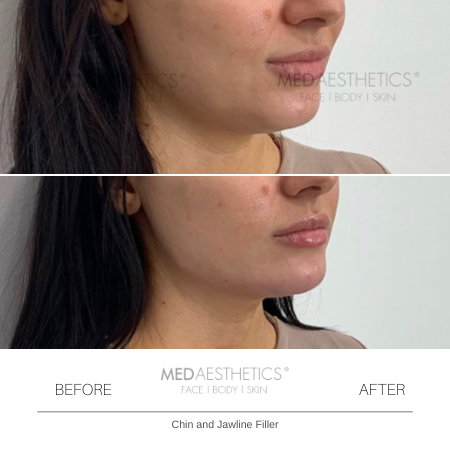 Medaesthetics - Chin and Jawline Fillers - Before and After Picture 20200210125426 - Treatment performed by Doctor Ehsan Jadoon