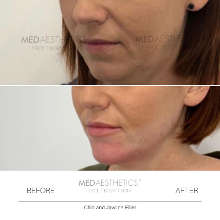 Medaesthetics - Chin and Jawline Fillers - Before and After Picture 20200210125427 - Treatment performed by Doctor Ehsan Jadoon