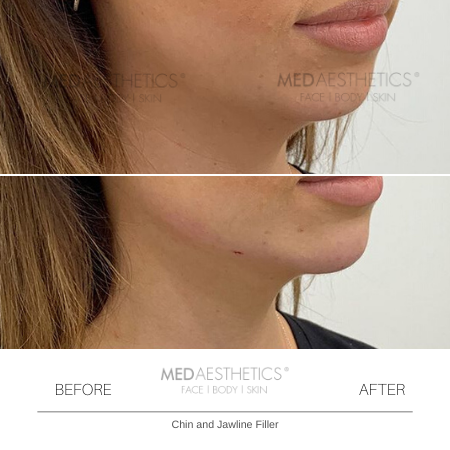 Medaesthetics - Chin and Jawline Fillers - Before and After Picture 20200210125428 - Treatment performed by Doctor Ehsan Jadoon