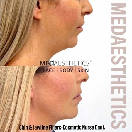 Medaesthetics - Chin and Jawline Fillers - Before and After Picture 20200514144839 - Treatment performed by Doctor Ehsan Jadoon