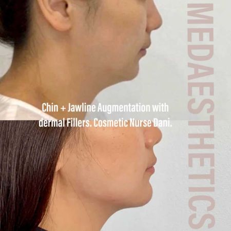 Medaesthetics - Chin and Jawline Fillers - Before and After Picture 20200514144844 - Treatment performed by Doctor Ehsan Jadoon