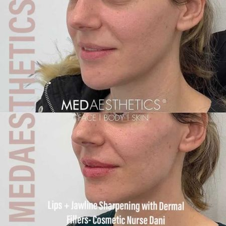 Medaesthetics - Chin and Jawline Fillers - Before and After Picture 20200611095747 - Treatment performed by Doctor Ehsan Jadoon