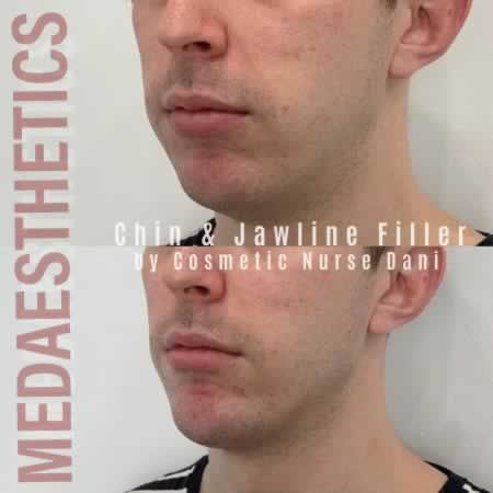 Medaesthetics - Chin and Jawline Fillers - Before and After Picture 20200611095749 - Treatment performed by Doctor Ehsan Jadoon