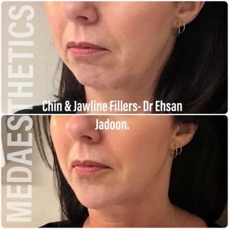 Medaesthetics - Chin and Jawline Fillers - Before and After Picture 20200611095751 - Treatment performed by Doctor Ehsan Jadoon