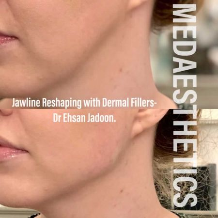 Medaesthetics - Chin and Jawline Fillers - Before and After Picture 20200611095756 - Treatment performed by Doctor Ehsan Jadoon