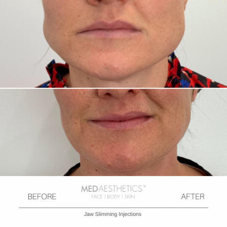 Medaesthetics - Jaw Slimming Injections - Before and After Picture 20200210162414 - Treatment performed by Doctor Ehsan Jadoon