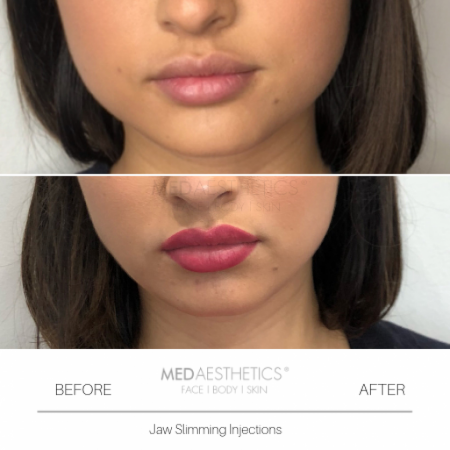 Medaesthetics - Jaw Slimming Injections - Before and After Picture 20200210162437 - Treatment performed by Doctor Ehsan Jadoon