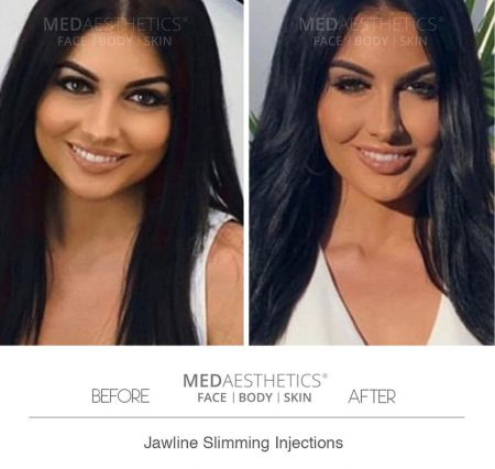 Medaesthetics - Jaw Slimming Injections - Before and After Picture 20200210162446 - Treatment performed by Doctor Ehsan Jadoon