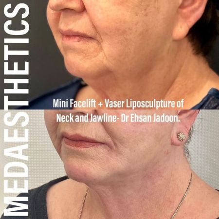 Medaesthetics - Double Chin & Facial Liposuction - Before and After Picture 20210215212623 - Treatment performed by Doctor Ehsan Jadoon