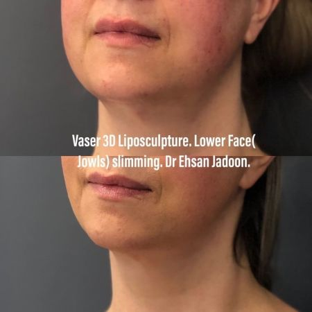 Medaesthetics - Double Chin & Facial Liposuction - Before and After Picture 20210215212627 - Treatment performed by Doctor Ehsan Jadoon