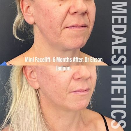 Medaesthetics - Double Chin & Facial Liposuction - Before and After Picture 20210215212634 - Treatment performed by Doctor Ehsan Jadoon