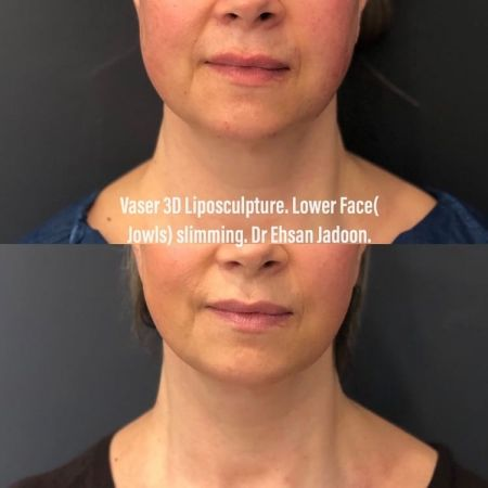 Medaesthetics - Double Chin & Facial Liposuction - Before and After Picture 20210215212636 - Treatment performed by Doctor Ehsan Jadoon