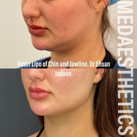 Medaesthetics - Double Chin & Facial Liposuction - Before and After Picture 20210215212641 - Treatment performed by Doctor Ehsan Jadoon