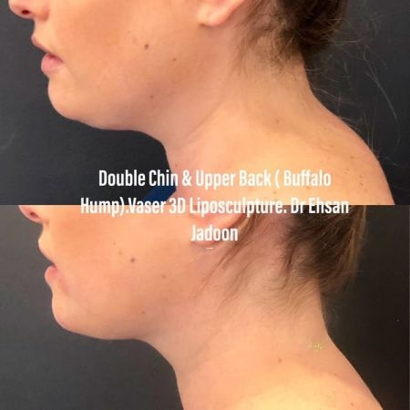 Medaesthetics - Double Chin & Facial Liposuction - Before and After Picture 20210215212643 - Treatment performed by Doctor Ehsan Jadoon