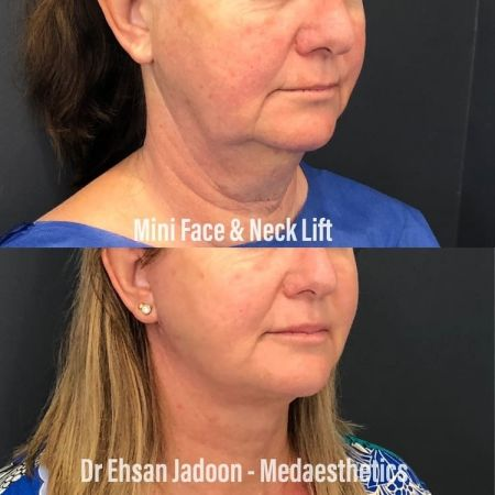 Medaesthetics - Double Chin & Facial Liposuction - Before and After Picture 20210215212647 - Treatment performed by Doctor Ehsan Jadoon