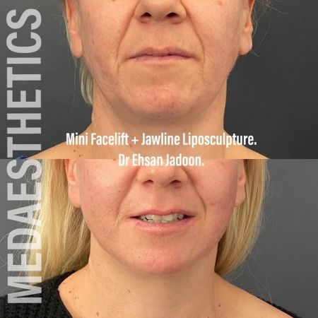 Medaesthetics - Double Chin & Facial Liposuction - Before and After Picture 20210215212652 - Treatment performed by Doctor Ehsan Jadoon