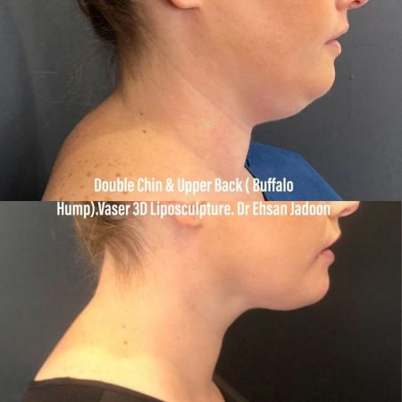 Medaesthetics - Double Chin & Facial Liposuction - Before and After Picture 20210215212654 - Treatment performed by Doctor Ehsan Jadoon