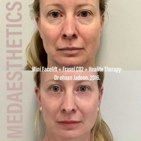 Medaesthetics - Healite LED - Before and After Picture 01200427124001 - Treatment performed by Doctor Ehsan Jadoon