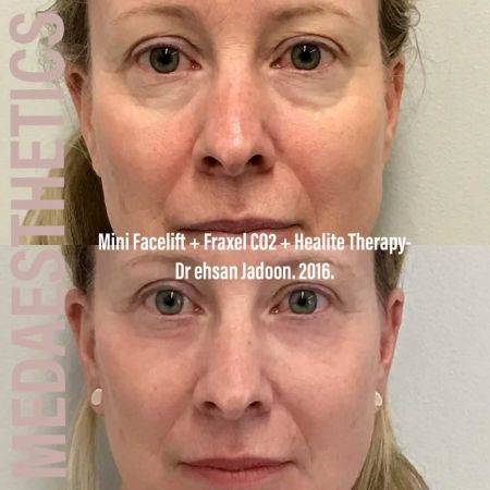 Medaesthetics - Healite LED - Before and After Picture 01200427124002 - Treatment performed by Doctor Ehsan Jadoon