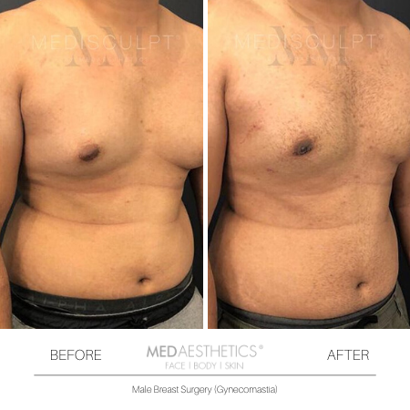 Medaesthetics - Male Breast (Gynecomastia) Surgery - Before and After Picture 20200214103941 - Treatment performed by Doctor Ehsan Jadoon