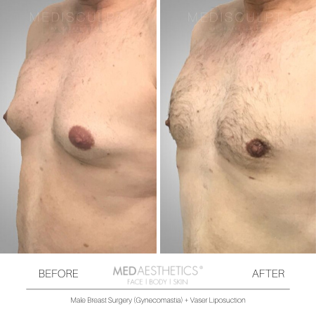 Medaesthetics - Male Breast (Gynecomastia) Surgery - Before and After Picture 20200214103942 - Treatment performed by Doctor Ehsan Jadoon
