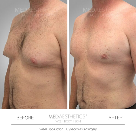 Medaesthetics - Male Breast (Gynecomastia) Surgery - Before and After Picture 20200214103943 - Treatment performed by Doctor Ehsan Jadoon