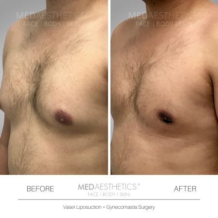 Medaesthetics - Male Breast (Gynecomastia) Surgery - Before and After Picture 20200214103944 - Treatment performed by Doctor Ehsan Jadoon