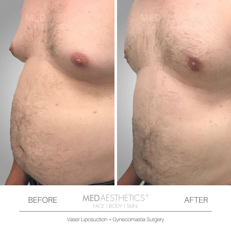 Medaesthetics - Male Breast (Gynecomastia) Surgery - Before and After Picture 20200214103945 - Treatment performed by Doctor Ehsan Jadoon