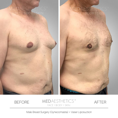 Medaesthetics - Male Breast (Gynecomastia) Surgery - Before and After Picture 20200214103946 - Treatment performed by Doctor Ehsan Jadoon