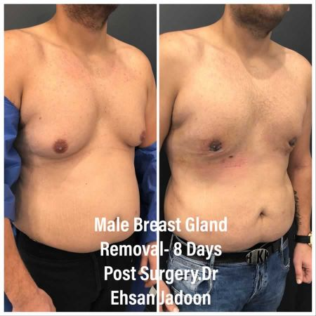 Medaesthetics - Male Breast (Gynecomastia) Surgery - Before and After Picture 20200601190939 - Treatment performed by Doctor Ehsan Jadoon